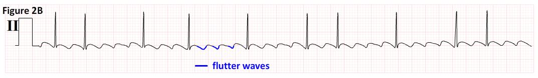 Mat Multifocal Atrial Tachycardia Multifocal Atrial