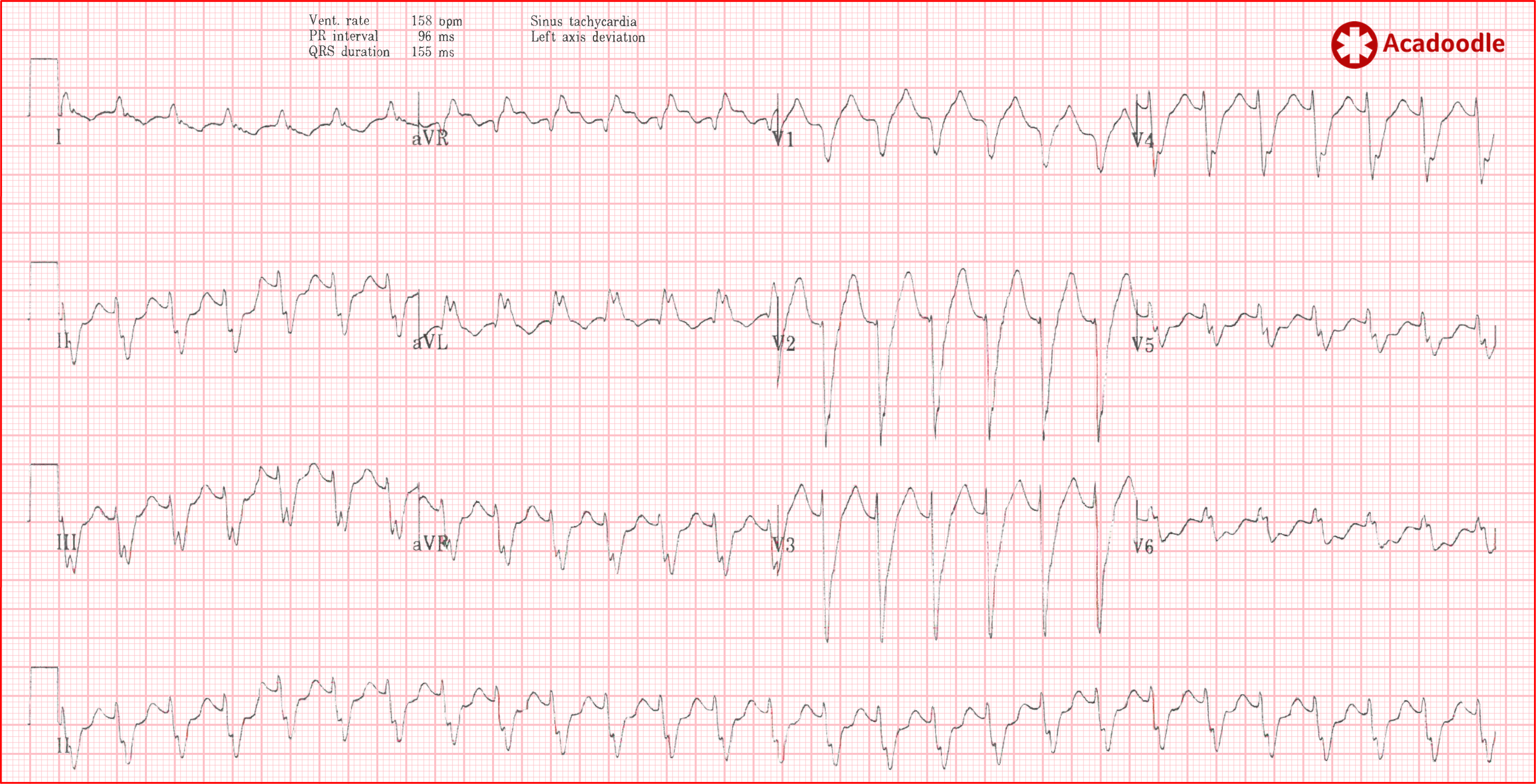 The Mechanism of Atrial Flutter