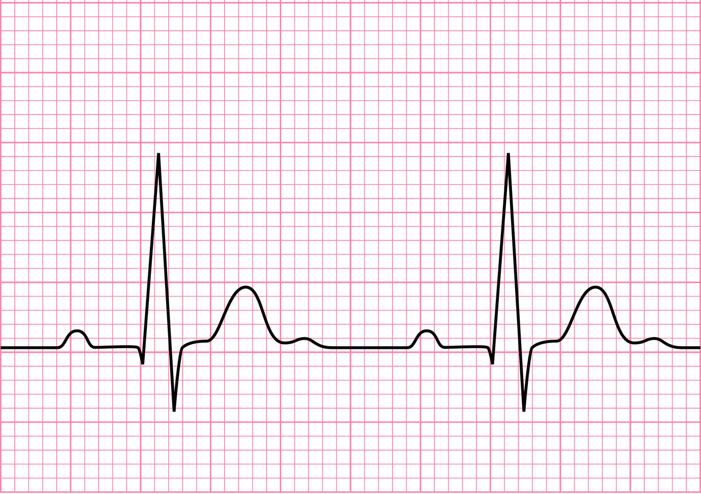 how to read an electrocardiogram ecg part one basic principles